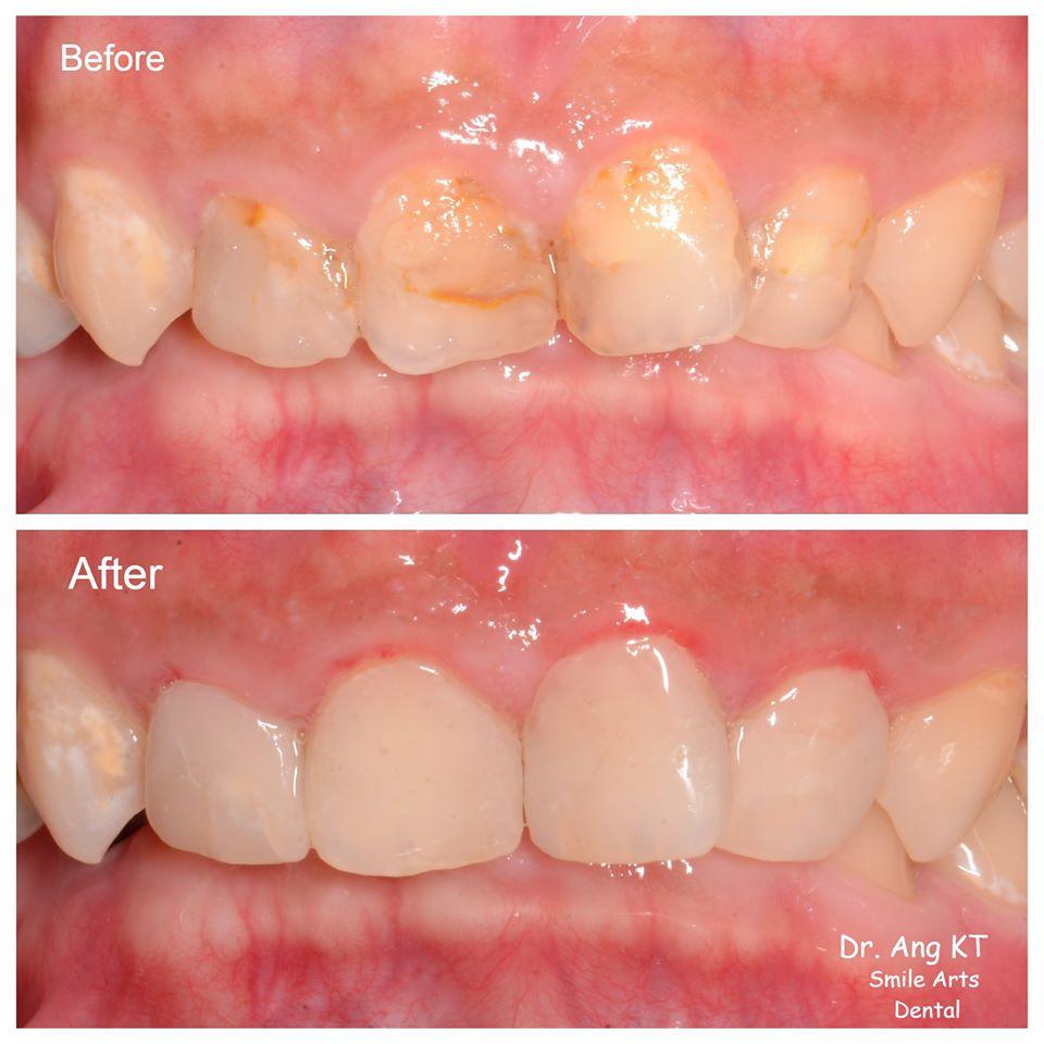 树脂修复牙